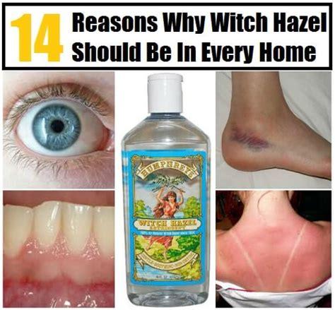 witch hazel    common ailments