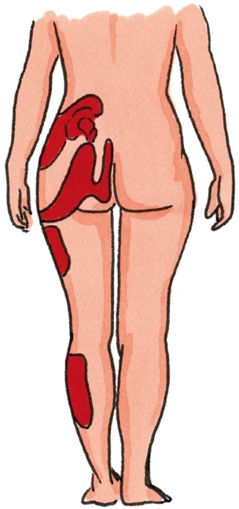 Chronische pijn : geen symptoom maar een ziekte van het