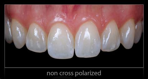 polareyes cross polarization filter