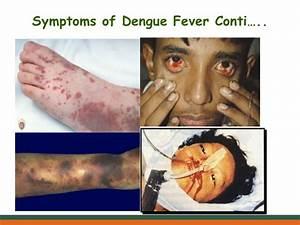 Dengue Fever At A Glance