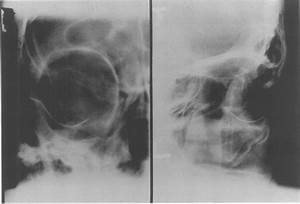 Anteroposteior And Lateral Orbital X Rays Showing The Tip