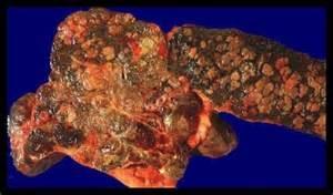 CANCER DU FOIE: Hépatite B et C, et alcool en cause - Le Mauricien Cancer Registries