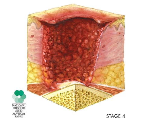 Bed Sores Stage 1 by Decubitus Ulcer Victims What Is A Decubitus Ulcer