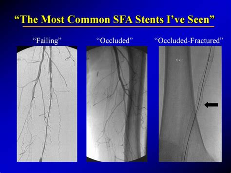 superficial femoral artery stents bare covered  drug