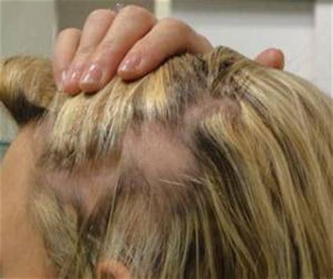 types  alopecia areata totalis  traction