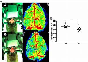 Photoperiodic Regulation Of Cerebral Blood Flow In White