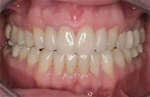 Natural Teeth With Porcelain Veneers | Cosmetic Dentistry ...