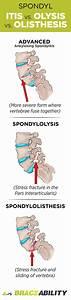 Ankylosing Spondylitis Chart Spondylitis Spondylolisthesis Types Of Arthritis