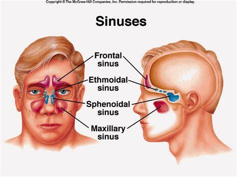 nasal cavity sphenoid sinus sinuses frontal maxillary sinusitis side term symptoms sphenoidal facial