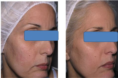 Effective Treatment of Atrophic and Icepick Acne Scars ...