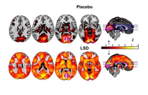scientists observe lsd effects   brain  users experience hallucinations