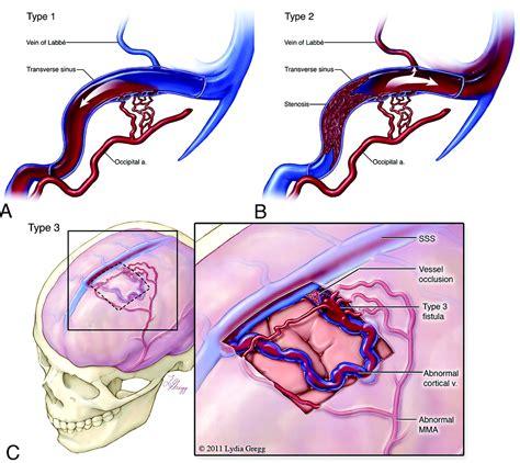 Dural arteriovenous fistula (DAVF) - Stroke & Aneurysm Center