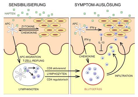 Pollenallergie / Heuschnupfen: daab