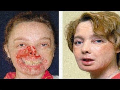 First Face Transplant Recipient