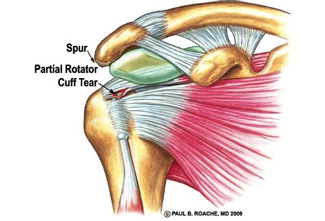 Rotator Cuff Injury And Treatment Basics-continued