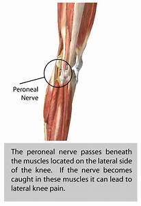 Peroneal Nerve Entrapment - Halifax Spine & Joint Clinic