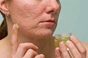 10 Most Effective Ways To Remove Acne Scars  U0026 Pimple Marks