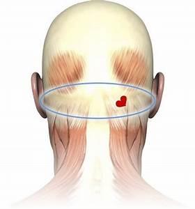 Throbbing Vein  Back Of Head  Pea Sized Area Please Help