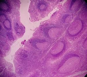 Biosc-139 Lymphatic Slides