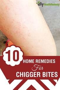 Home Remedies Chigger Bites