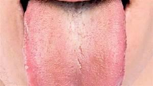 Налет на языке при псориазе
