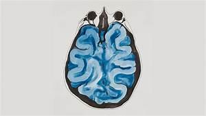 Depression U2019s Impact On Memory
