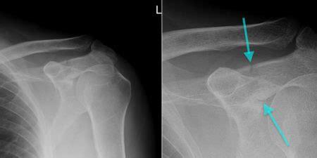 Acromion Fracture - Radiology at St. Vincent's University ...