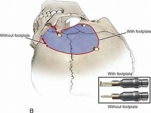 Modified Orbitozygomatic Craniotomy | Ento Key