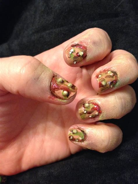 Fingernail Infection Pus How You Can Do It At Home