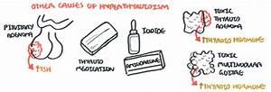 Hyperthyroidism  Thyrotoxicosis