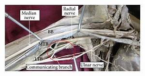 Communication Between Ulnar And Radial Nerve  Bb  Biceps