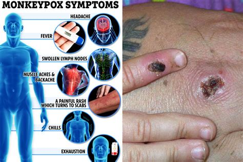 Brits given monkeypox vaccine to stop spread after two ...
