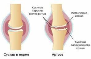 Алмаг-01 лечение шейного остеохондроза методика
