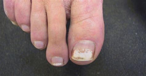 white spots  toenails  nail polish nails magazine