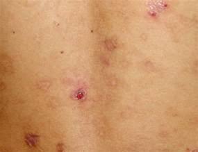 Eosinophilic Folliculitis