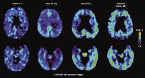 Ct Scan Brain Positron Emission Tomography Of Brain β Amyloid And Tau