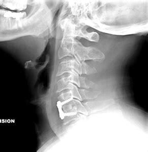 cervical radiculopathy treatment michigan cervical spine