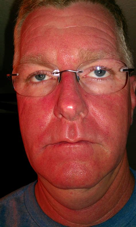 blue light treatment blue light therapy for skin pre cancer cancer the hull