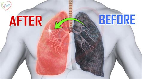 10 Natural Remedies To Clean Your Lungs Smokers And Non