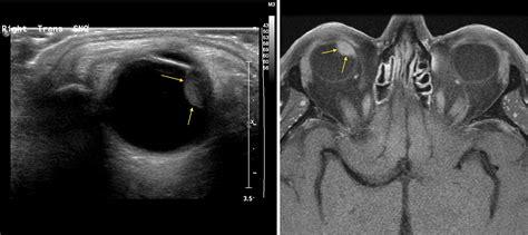 ocular melanoma   mri radiology  st vincents