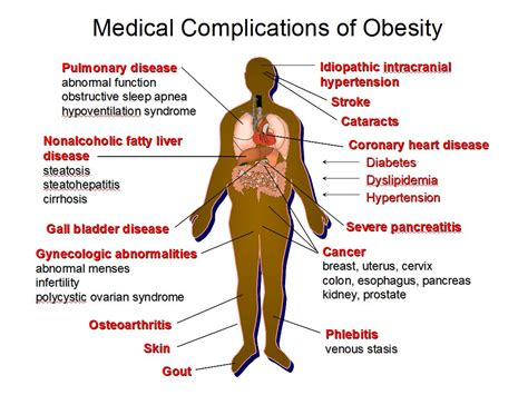 How Will Obesity Rates In The Future Affect Your