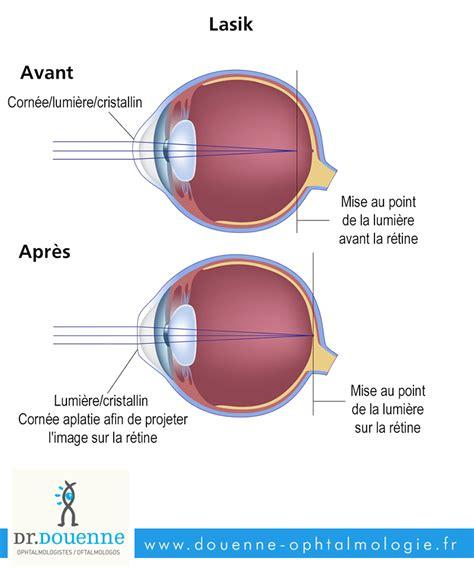 correction myopie lentille la myopie chirurgie de l oeil dr douenne 188   operation chirurgicale myopie