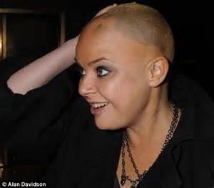 gail porter winning  battle  alopecia  hair