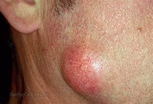 Epidermoid Cyst: Types, Causes, Symptoms, Diagnosis ...