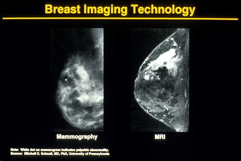 Why Sometimes Ill Opt Out Of Mammograms And Do This
