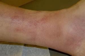 Мази от артрита ног