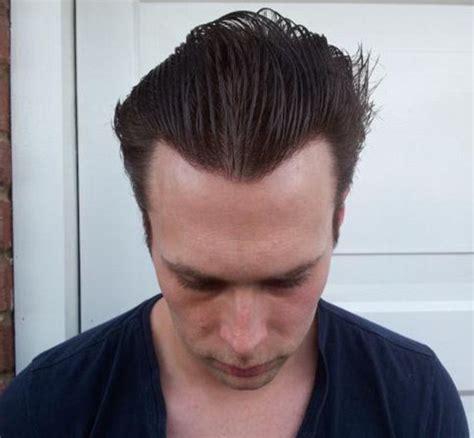 Hair Implants Stevenson Al 35772 Trapianto Capelli Ecco Come Funziona