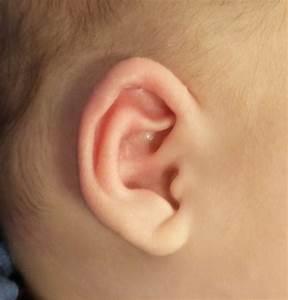 Ear Molding Newborn Pointed Ear