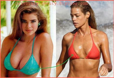 Denise Richards Chirurgie Pictures
