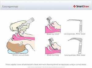 17 Best Images About Airway On Pinterest